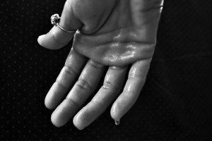 chwitzen Hilfe Koblenz Hyperhidrose - Übermäßiges Schwitzen