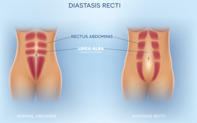Rektusdiastase / Rectusdiastase – Was ist das und was kann ich dagegen tun – Hilfe im Hunsrück